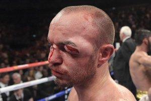 Kevin Mitchell eye