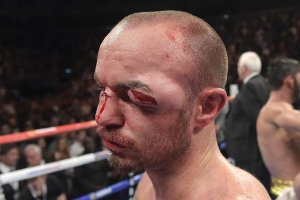 Kevin Mitchell eye